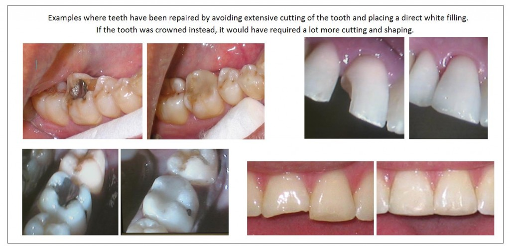 Direct white fillings placed