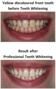Teeth Whitening of yellow teeth by Local Dentist dentael
