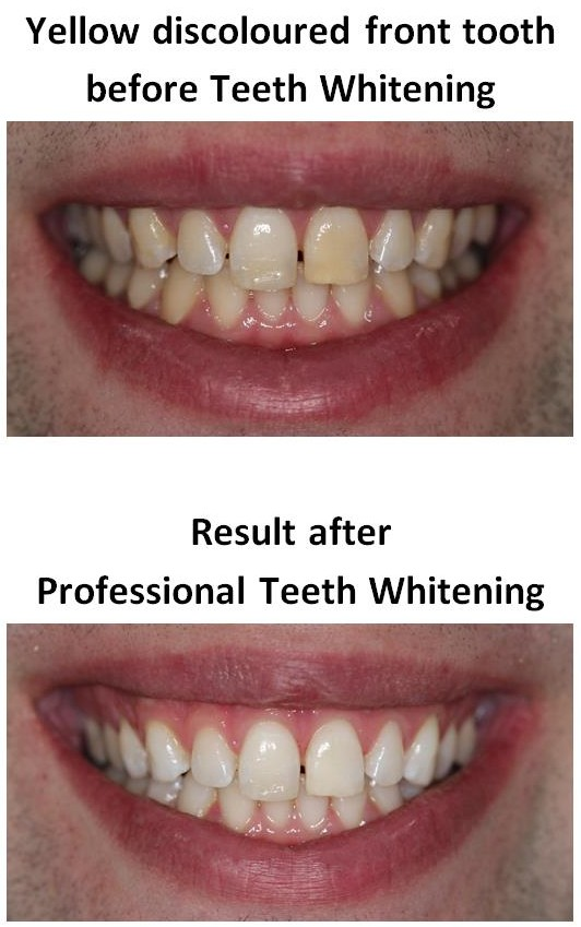 Teeth Whitening of yellow teeth by Local Dentist dentael