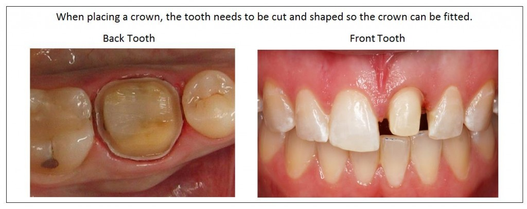 Tooth shaping prior to crowns