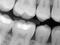 Greenford Dental Practice - dentael