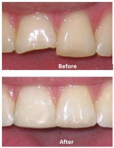 Repair chipped front tooth