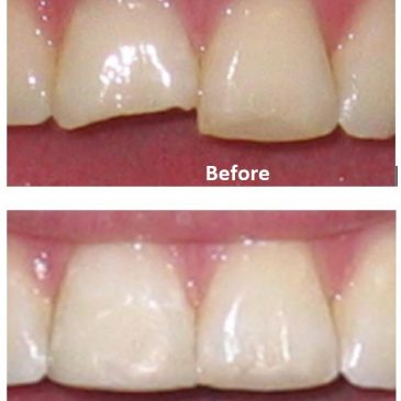 Fix chipped or broken front tooth – Cosmetic Dentist at dentael dental clinic