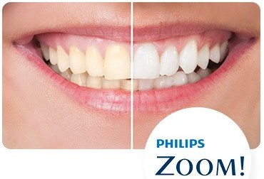 Teeth Whitening Female Dentist in Ealing