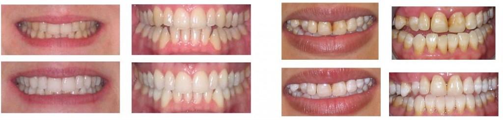 Teeth Whitening Dentist Southall