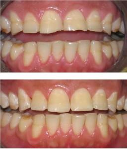 Cosmetic Dentistry Ealing, Perivale - dentael