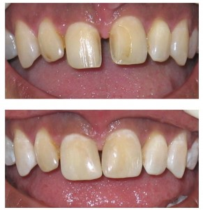 Cosmetic Dentistry Greenford 2- dentael