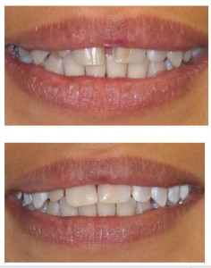 Cosmetic Dentistry Greenford- dentael