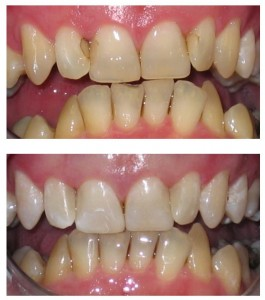 Cosmetic Dentistry Southall - dentael dental clinic