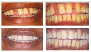 cosmetic dentistry ealing - adhesive bridges 2