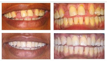 Fill missing tooth gap / Replace missing teeth – Adhesive bridges by dentael dentist in Ealing, Perivale.