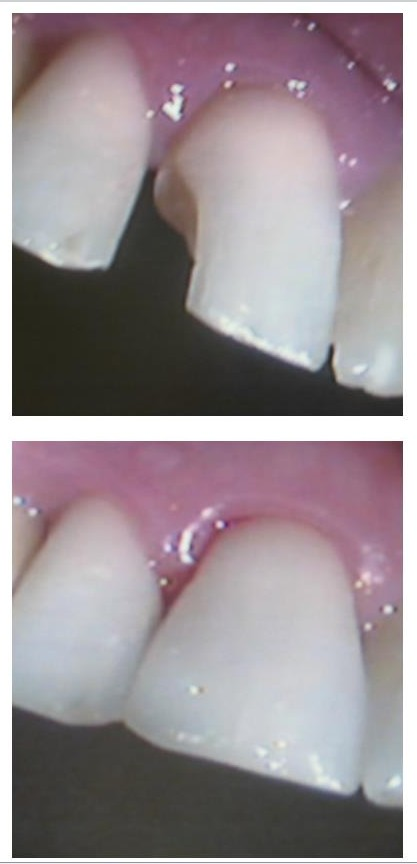 cosmetic white filling - cosmetic dentistry ealing - dentael