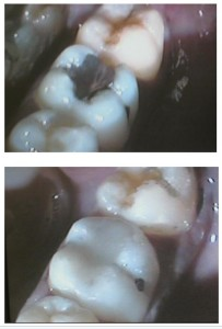 Cosmetic Dentistry Greenford - dentael