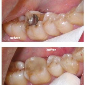 Fix chipped or broken tooth – Cosmetic Dentistry Ealing, Perivale by dentael dentist