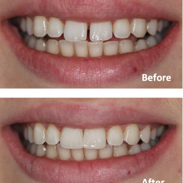 Close gap between teeth without braces – Affordable cosmetic dentistry in Ealing by dentael dentist