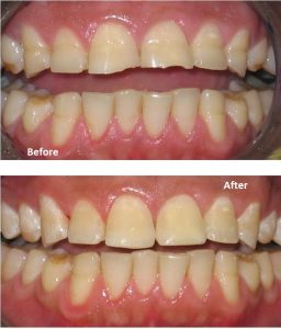 Repair worn teeth