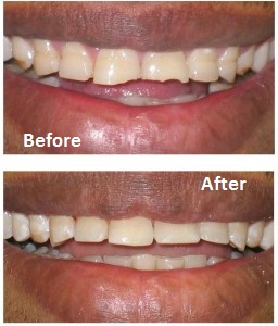 Repaired worn teeth - dentael dentist